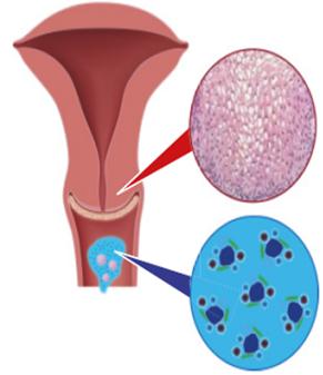 Papillomavírus termékenység. Condyloma penis