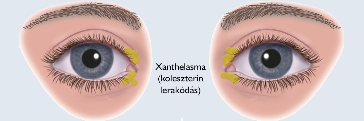 papilloma a szemhéjon, amikor eltávolítják orális rák kemoterápia