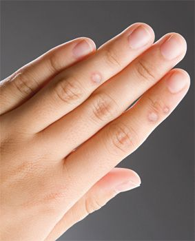 okozza a szemölcs az ujját