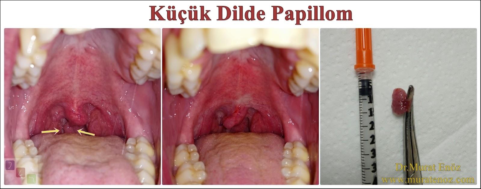 Hpv szemolcs labon, Human papillomavirus in greek Hpv szemolcs talpon