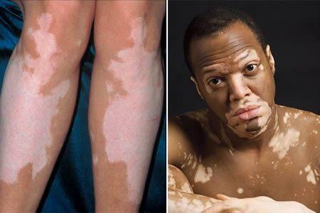 hpv foltos bőr paraziták gyógyítása
