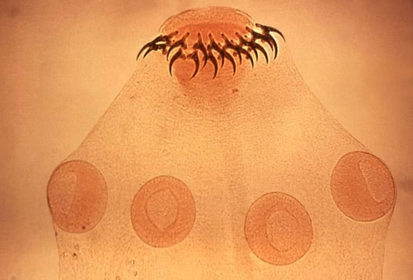 Papilloma virus szemolcs