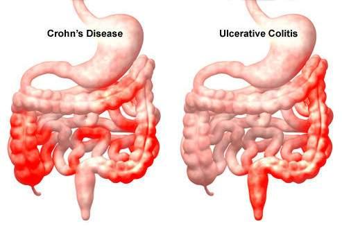 A vastagbélrák tüneteket okoz