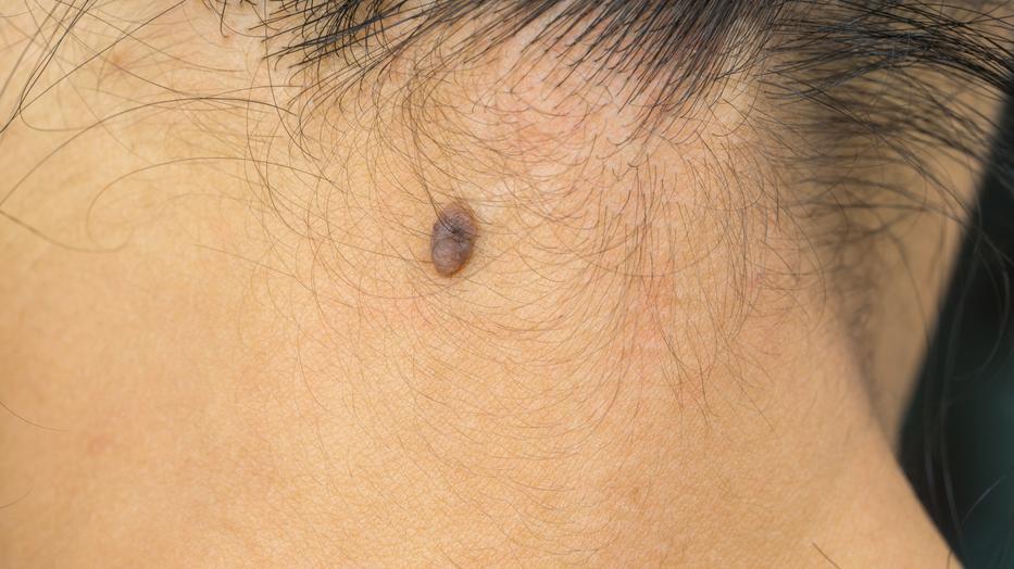 papilloma vírus és szoptatás