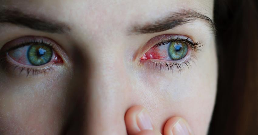szem papillómák