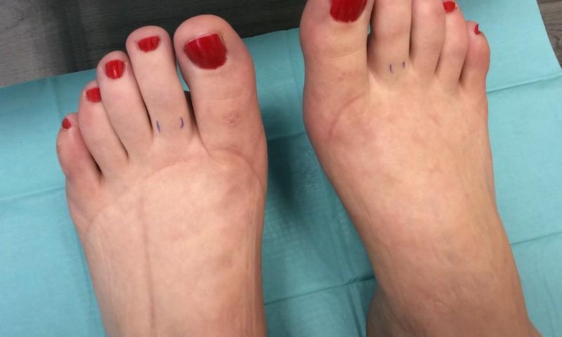papillomavírus lábak