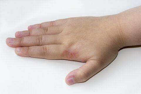 allergiás dermatitis az ujjak között a nyelv papilloma elváltozása