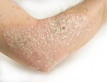 gyomor papilloma