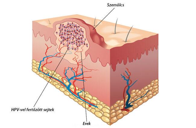 sacculin parazita condyloma utáni szövődmények