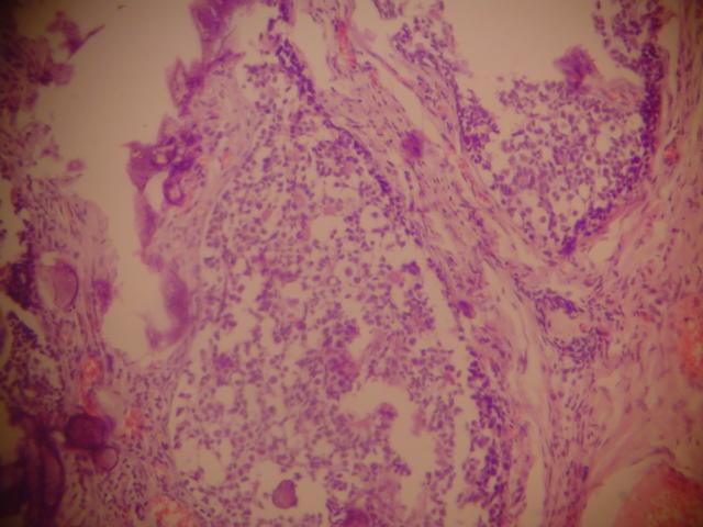 papilloma vírus nyálátvitele a paraziták legkárosabb gyógymódja