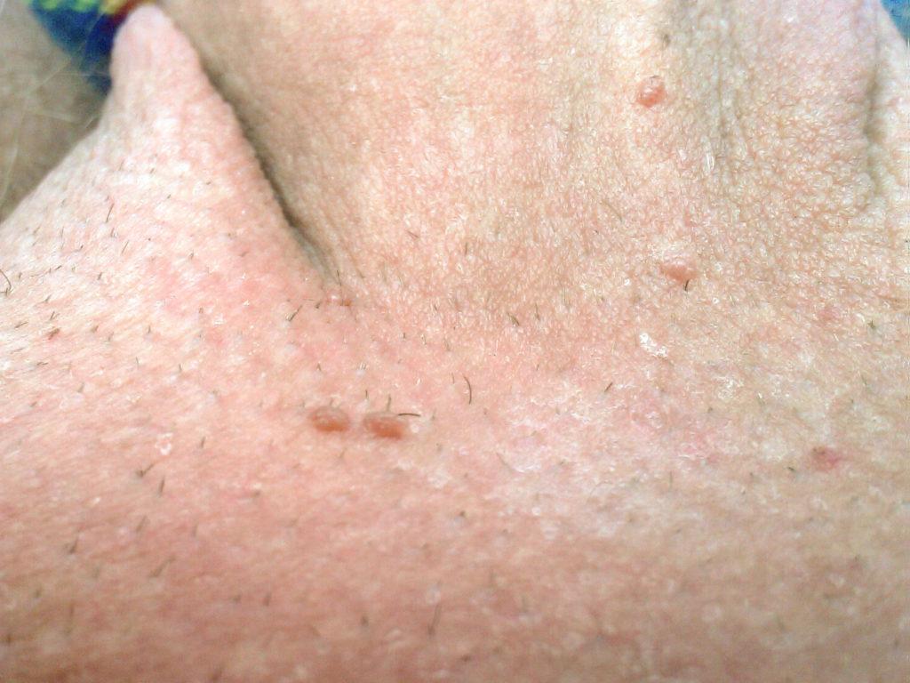 intraductalis papilloma viszket