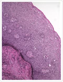 gyomorrák diagnózis eltávolítva a papillómát, ahogy gyógyul