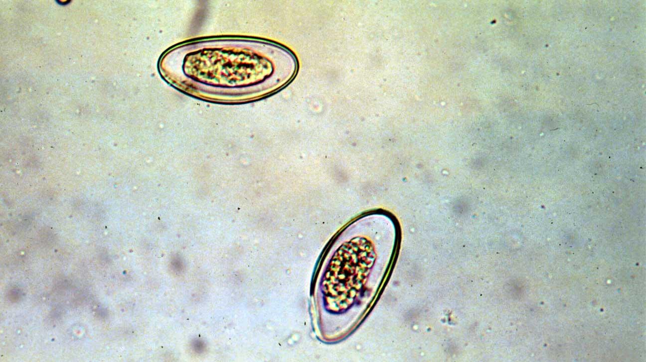 életképes pinworm)