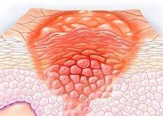emberi papillomavírus kezeletlen