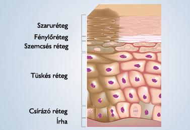 végbélrák vizeletretenciója a vastagbél méregtelenítésének legjobb módszere