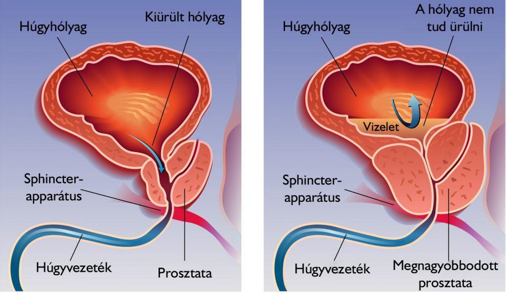 A prosztatarák tünetei és kezdeti jelei