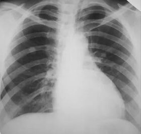 a tüdőrák fáj