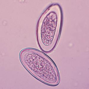 férgek monocitái paraziták ekcéma esetén