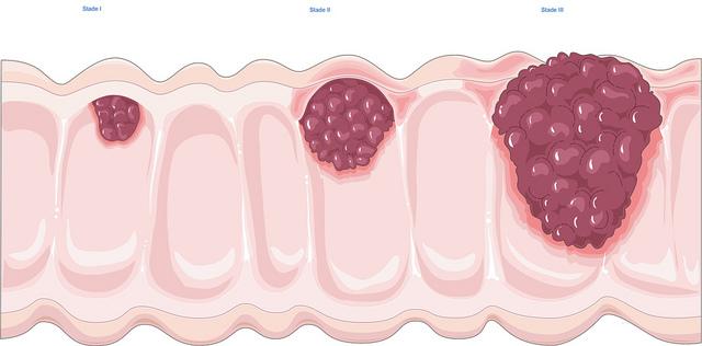 A vastagbél mirigyeiből kiinduló rosszindulatú daganat ( 13 )   Dr. Varga Patrícia