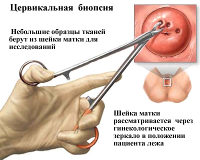 emberi papillomavírusok és rák