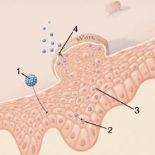 kezelés a genitális szemölcsök cauterizációja után