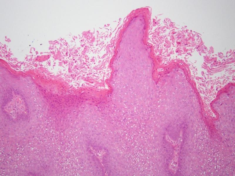 a condyloma genitális átvitele)