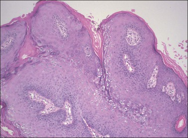 condilom vulva