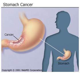 Gyomorrák tünetei és kezelése