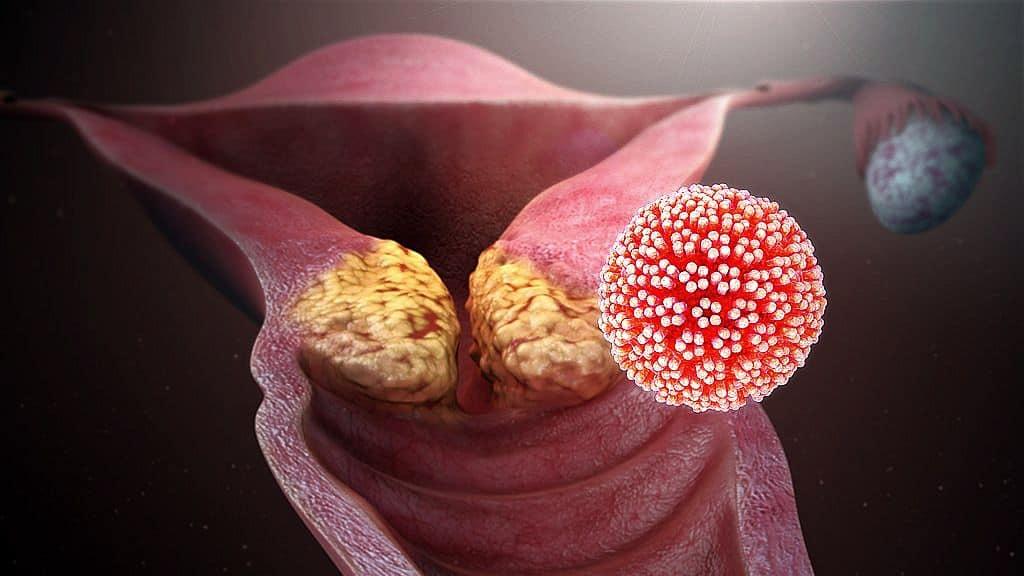 emberi papillomavírus viselkedése