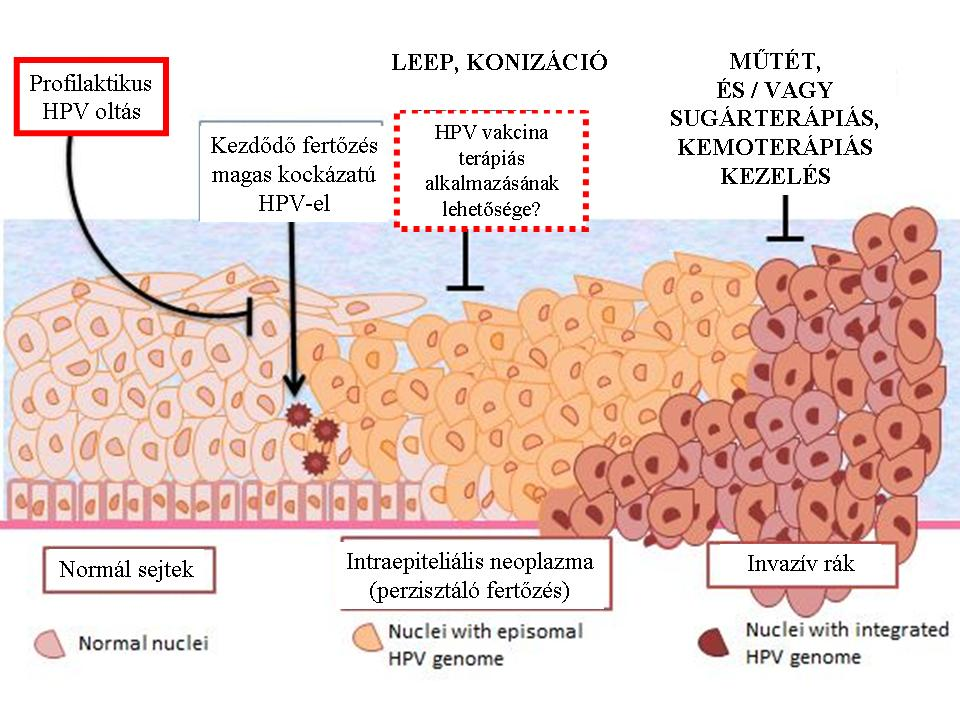 A legveszélyesebb HPV-törzsek - HáziPatika
