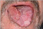 papilloma vírus terhes nőknél hpv genitális szemölcsök kezelése