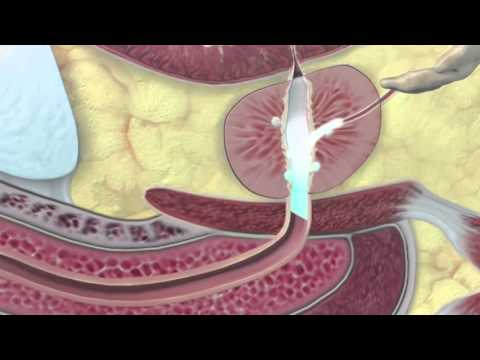 A legjobb tabletták és krémek vastagbél-megbetegedések kezelésére