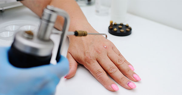 dermatitis yves rocher