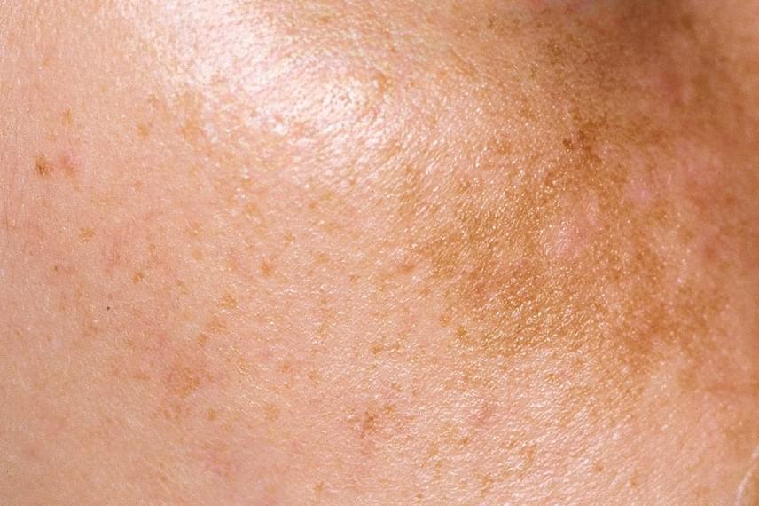 hpv foltos bőr hogyan kezelik a hüvelyi szemölcsöket