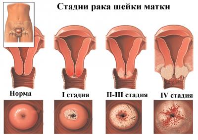 A papilloma vírust nyállal továbbítják - szorftabor.hu