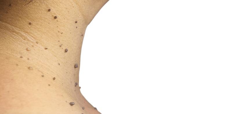 hpv szemölcs nyak