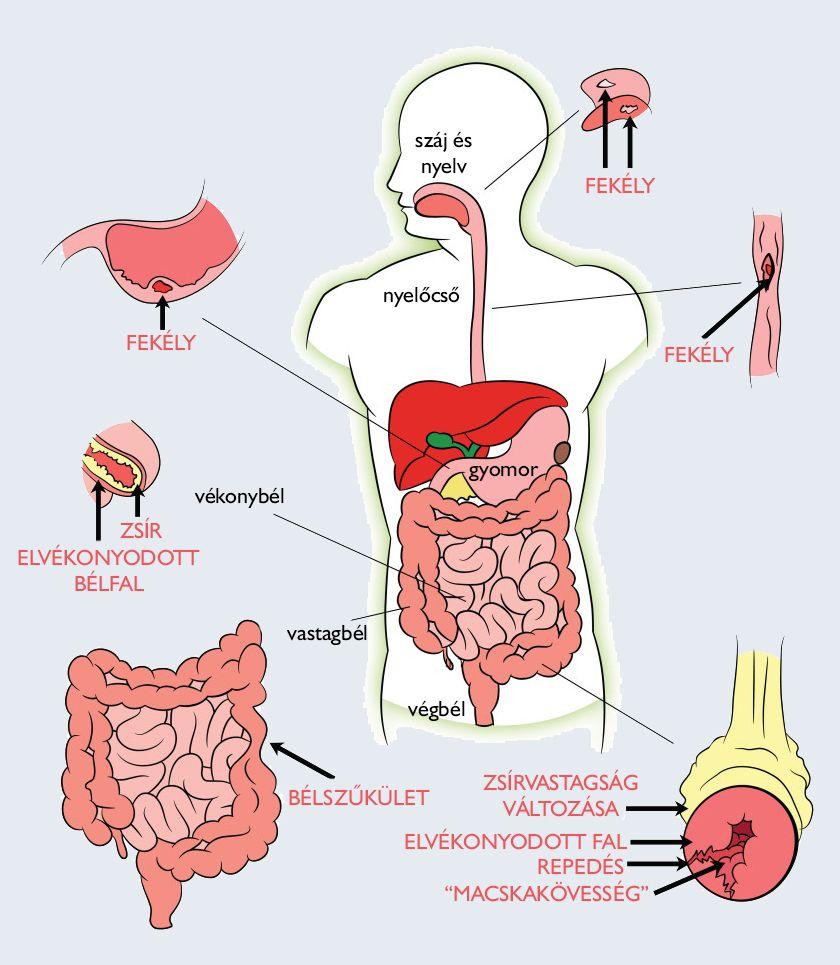 Az emberi test parazitainak kátrányos kezelése
