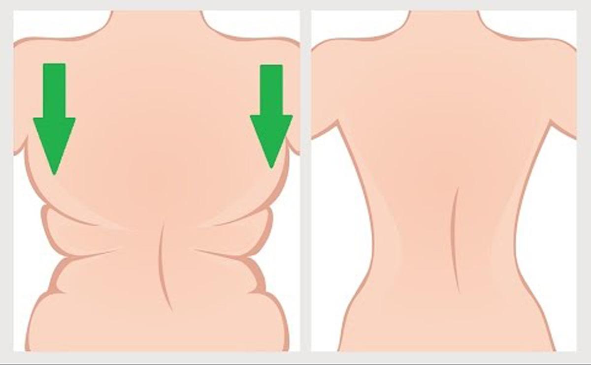 Csomó a nyakon, a hónaljban: a limfóma tünetei - EgészségKalauz