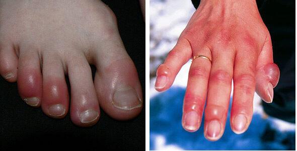 Száraz bőr kialakulásának okai és kezelése | Bepanthen