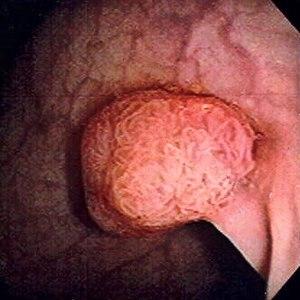 orr papilloma vs polip