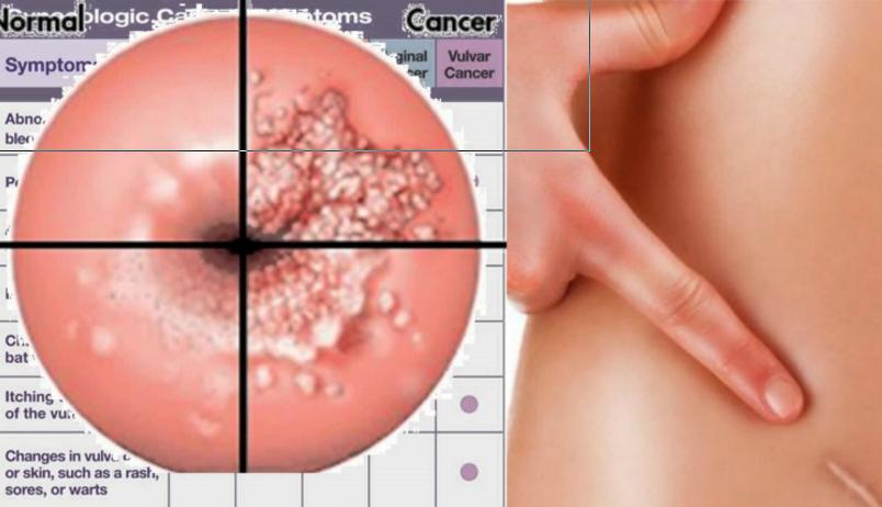 pinworm tünetek gyermekeknél segédanyagok a nemi szemölcsökhöz