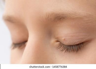 Vírusos szemölcs tünetei és kezelése - HáziPatika A plantáris szemölcsök okai a gyermekeknél