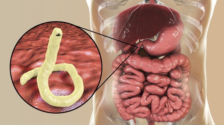paraziták és buzgó tünetek