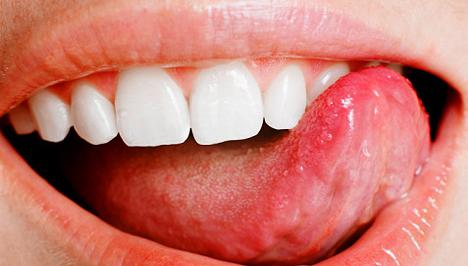 Küzdelem a szájüregi rák ellen
