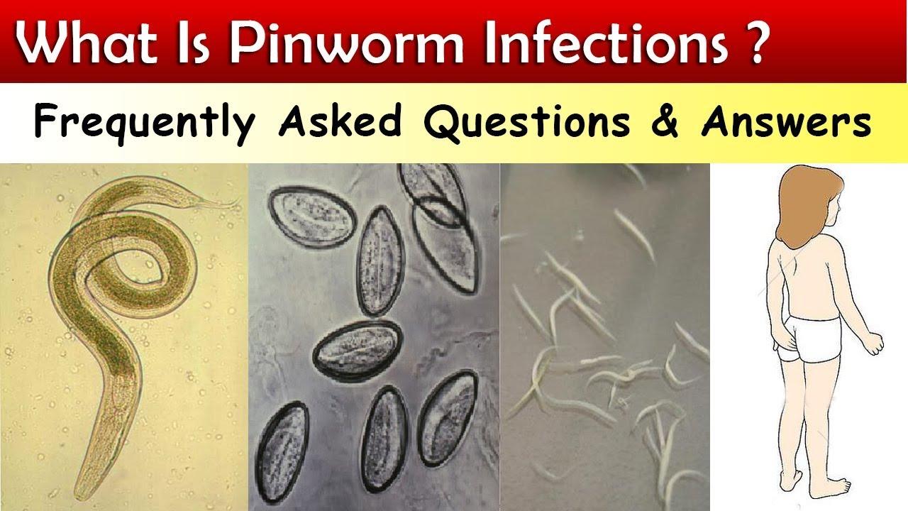 A pinworms átvitele, Hogyan lehet megszabadulni a pinworms örökre