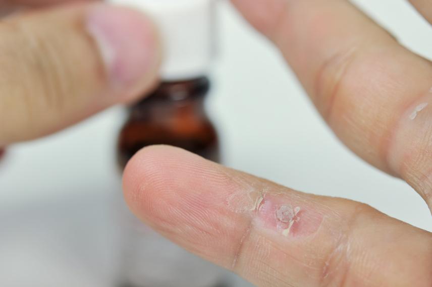 szemölcsök az ember kezén hpv vírus szemolcs kepek