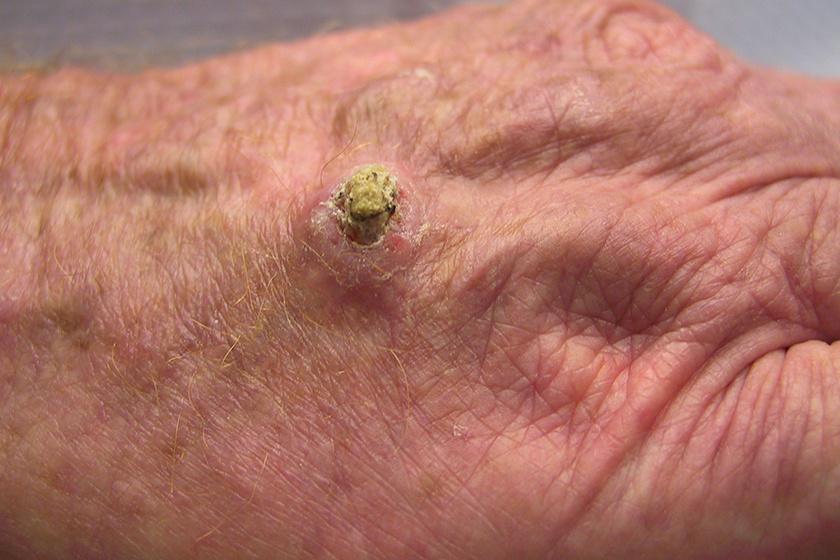A bőrdaganatokról