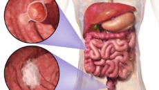 Sok esetben téves a rák terjedésének hagyományos TNM modellje | bestcarwash.hu