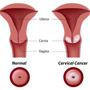 endometrium rák mikroszatellit instabilitása