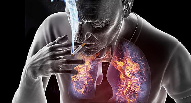 Rák hodgkin remisszió, A nyirokrendszer rákos tünetei